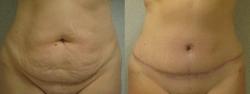 abdominoplasty-patient-05a