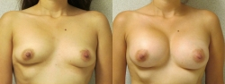 Breast-Aug-Pt-3