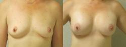 Breast-Aug-Pt4