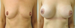breast-aug-patient-09a