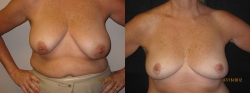 bowers-breast-lift1